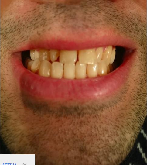 Tre anni fa ho conseguito un lavoro di protesi fissa sui molari e premolari