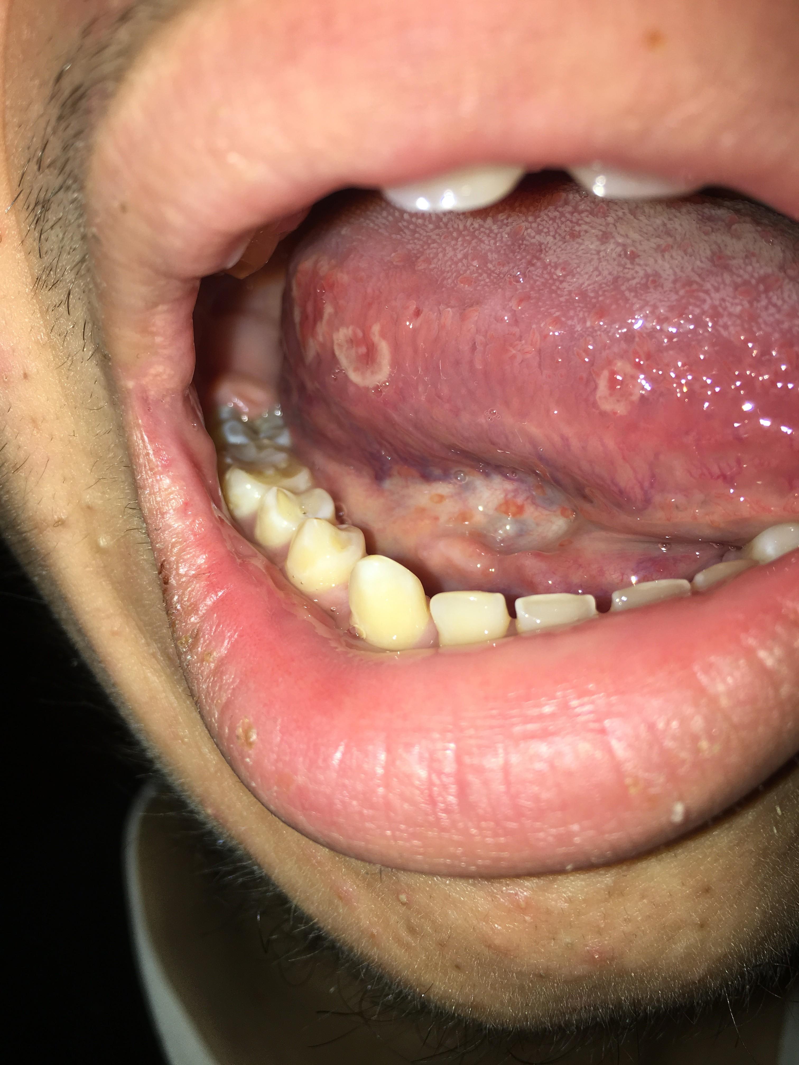 Lesioni sulla lingua