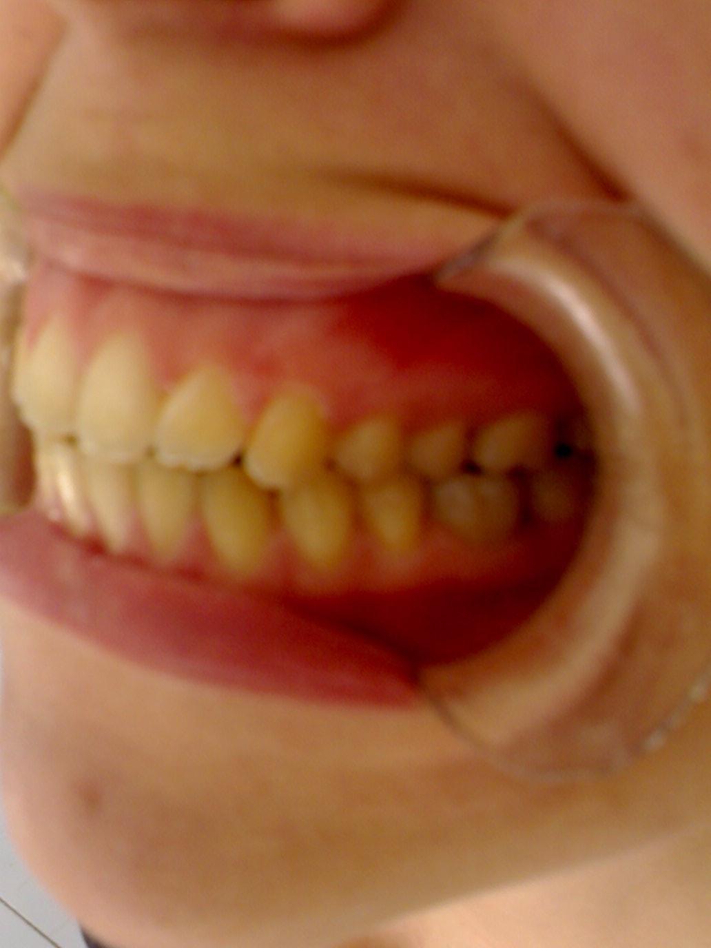 E' il caso che tolga 4 denti?