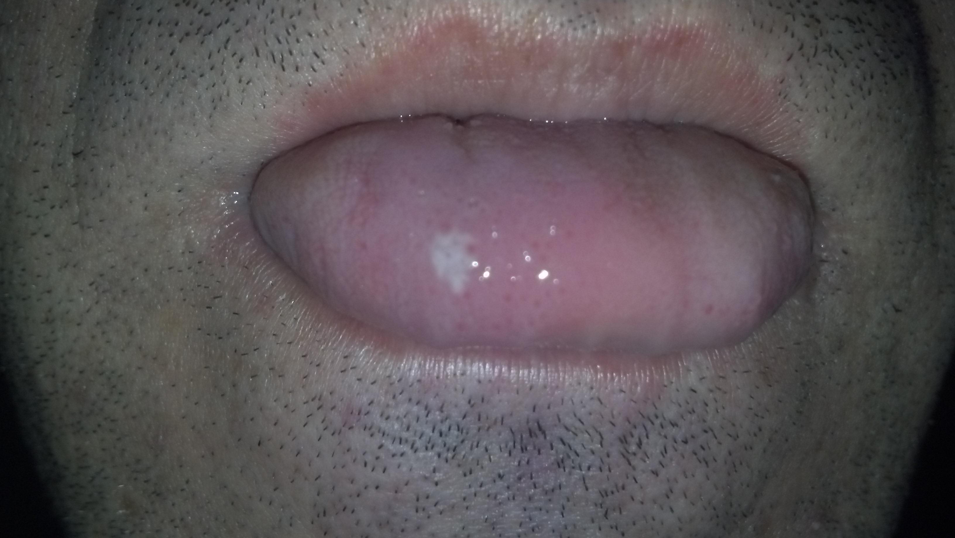 E' la quinta volta che mi esce questa macchiolina sulla lingua