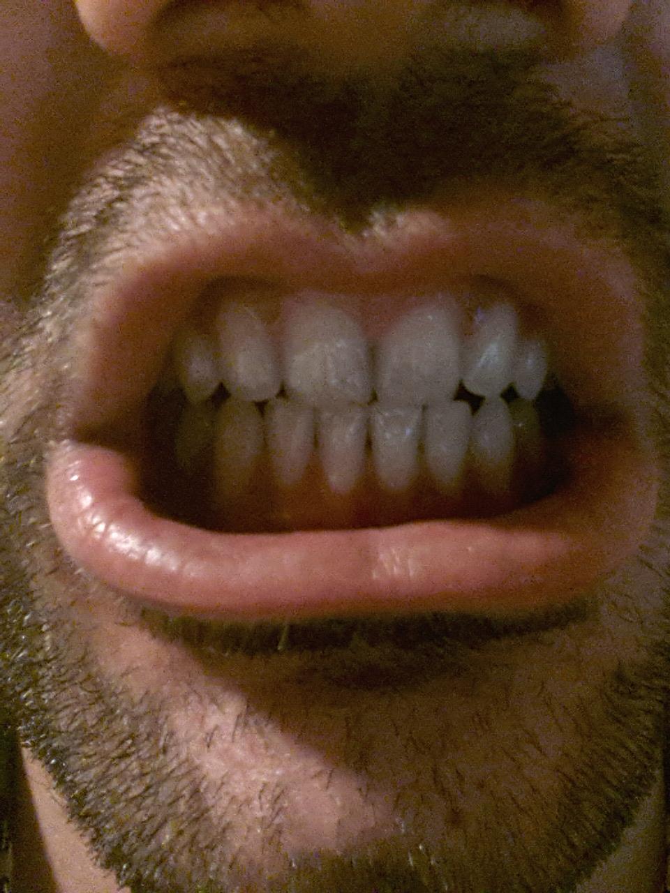 Ho notato che i denti incisivi superiori inferiori non si sovrappongono piu tra di loro