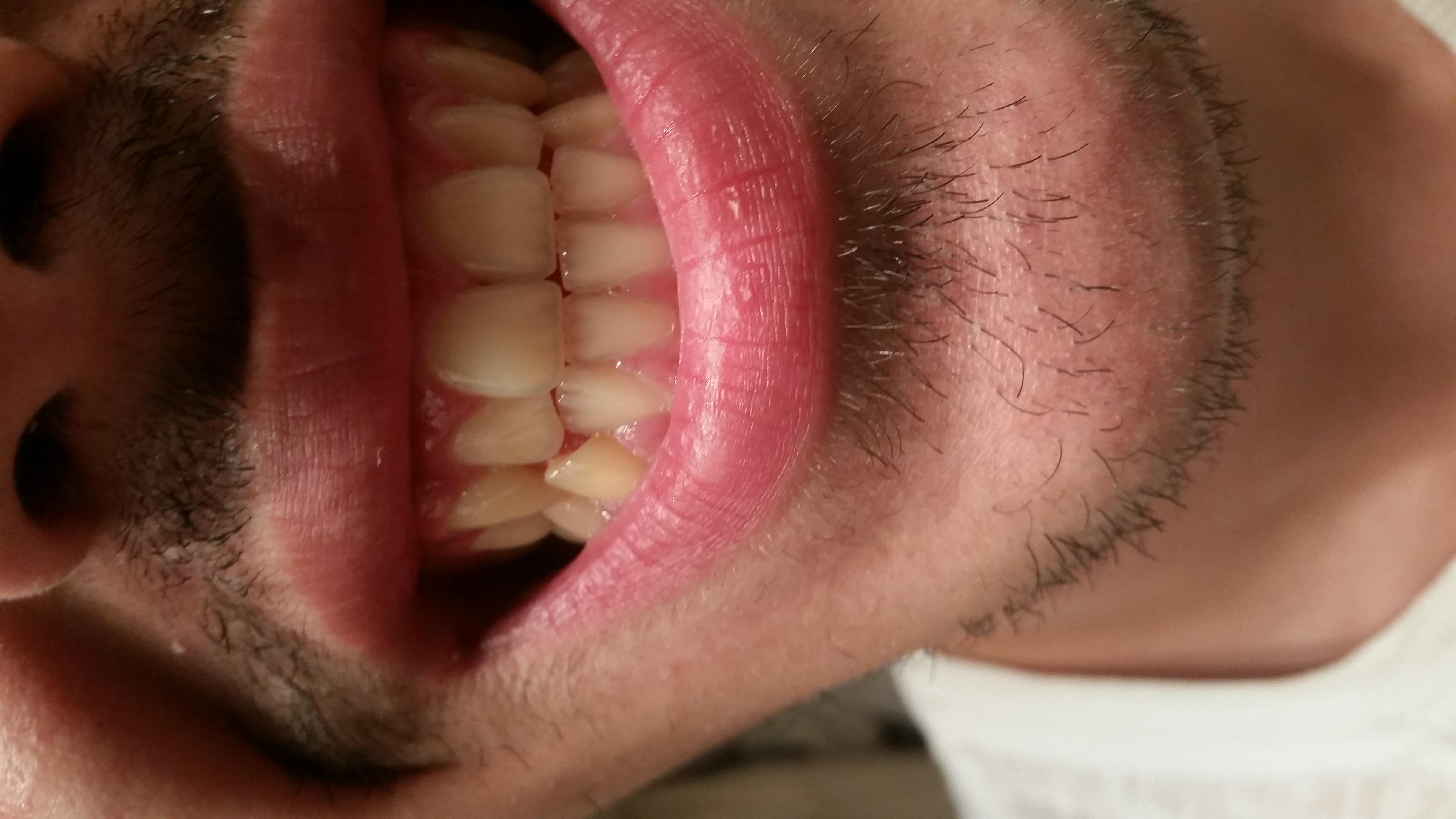 Esiste qualche cura sbiancante da applicare direttamente sui denti?