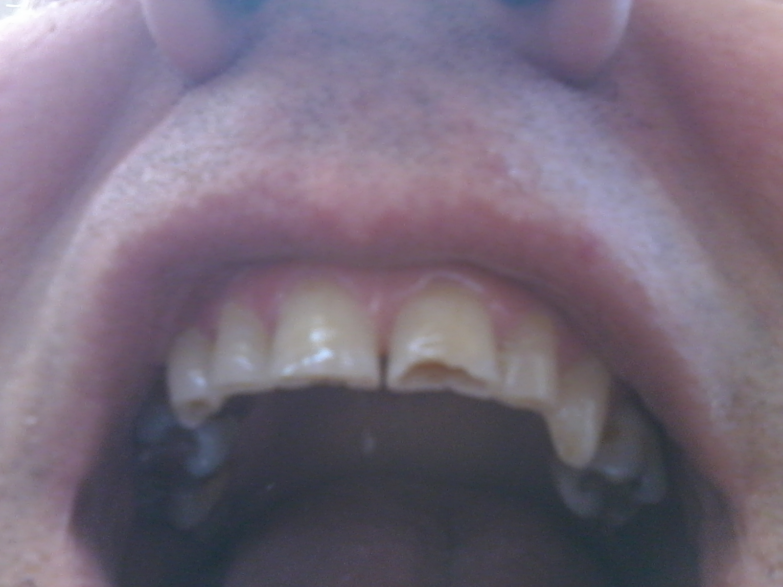 Vorrei risolvere il problema dell'usura dei denti frontali