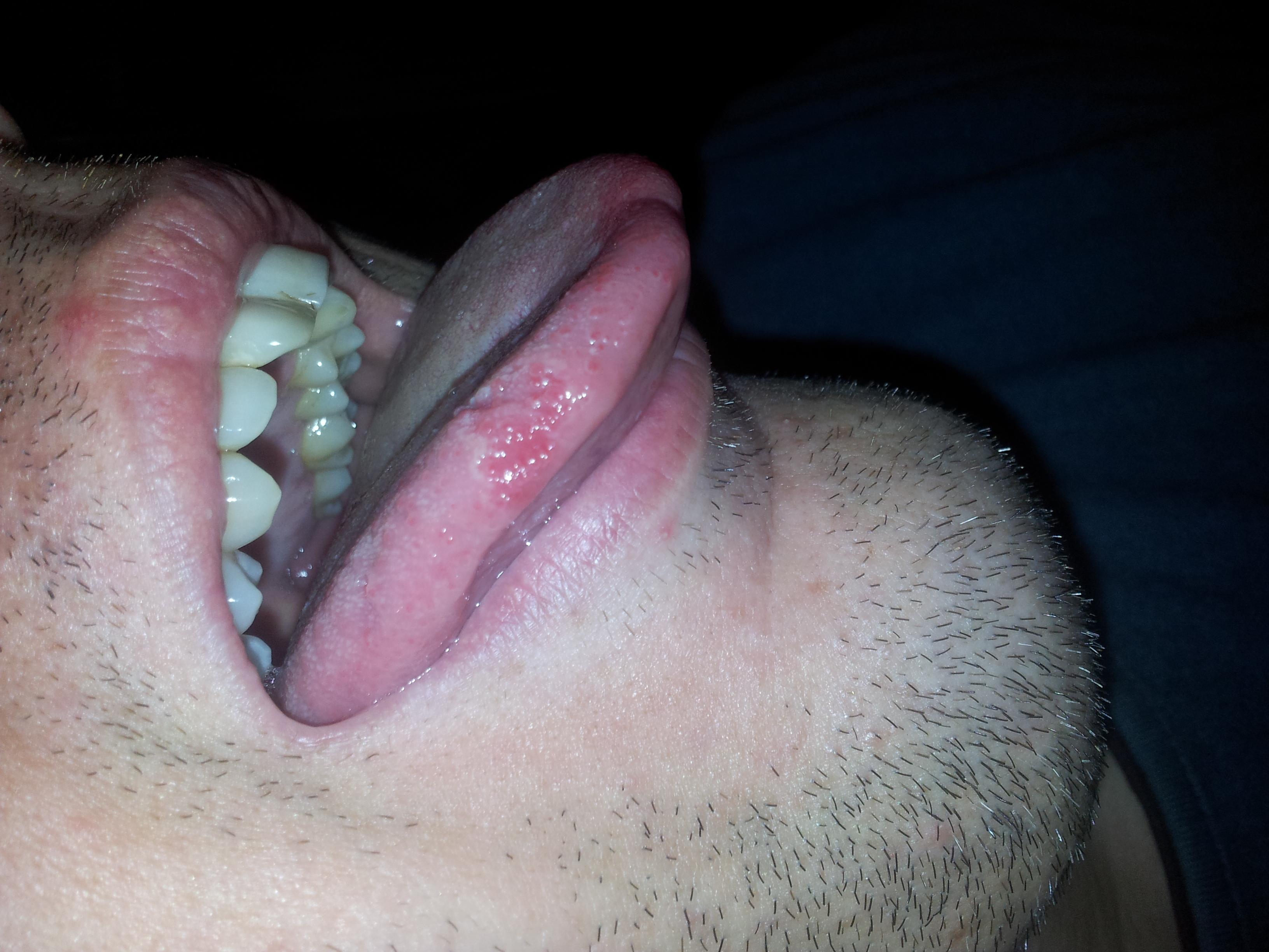 Ho la lingua con queste macchie da circa 4 mesi