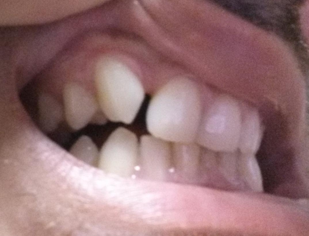 Posso ricorrere all'apparecchio ortodontico per far spazio ad un impianto?