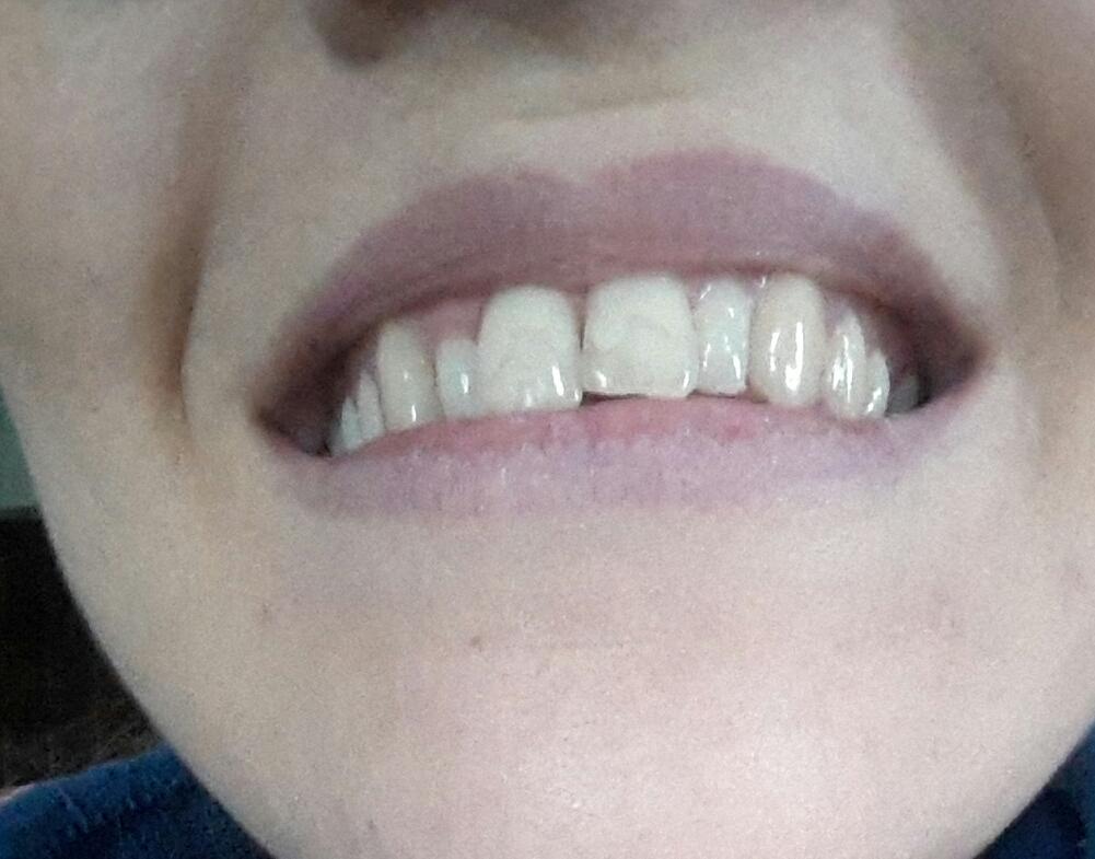 Sbiancamento dentale su otturazione