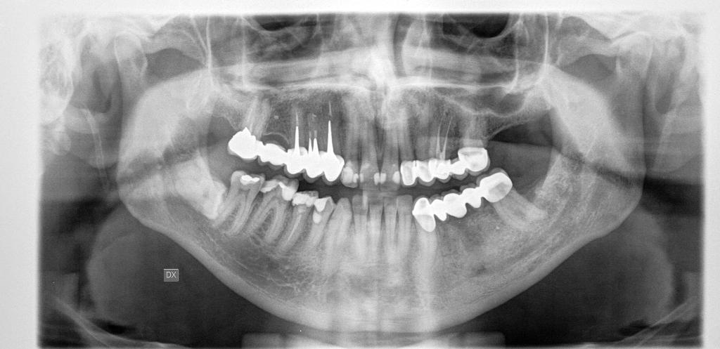 Questo dolore può essere imputabile al dente del giudizio ancora incluso?