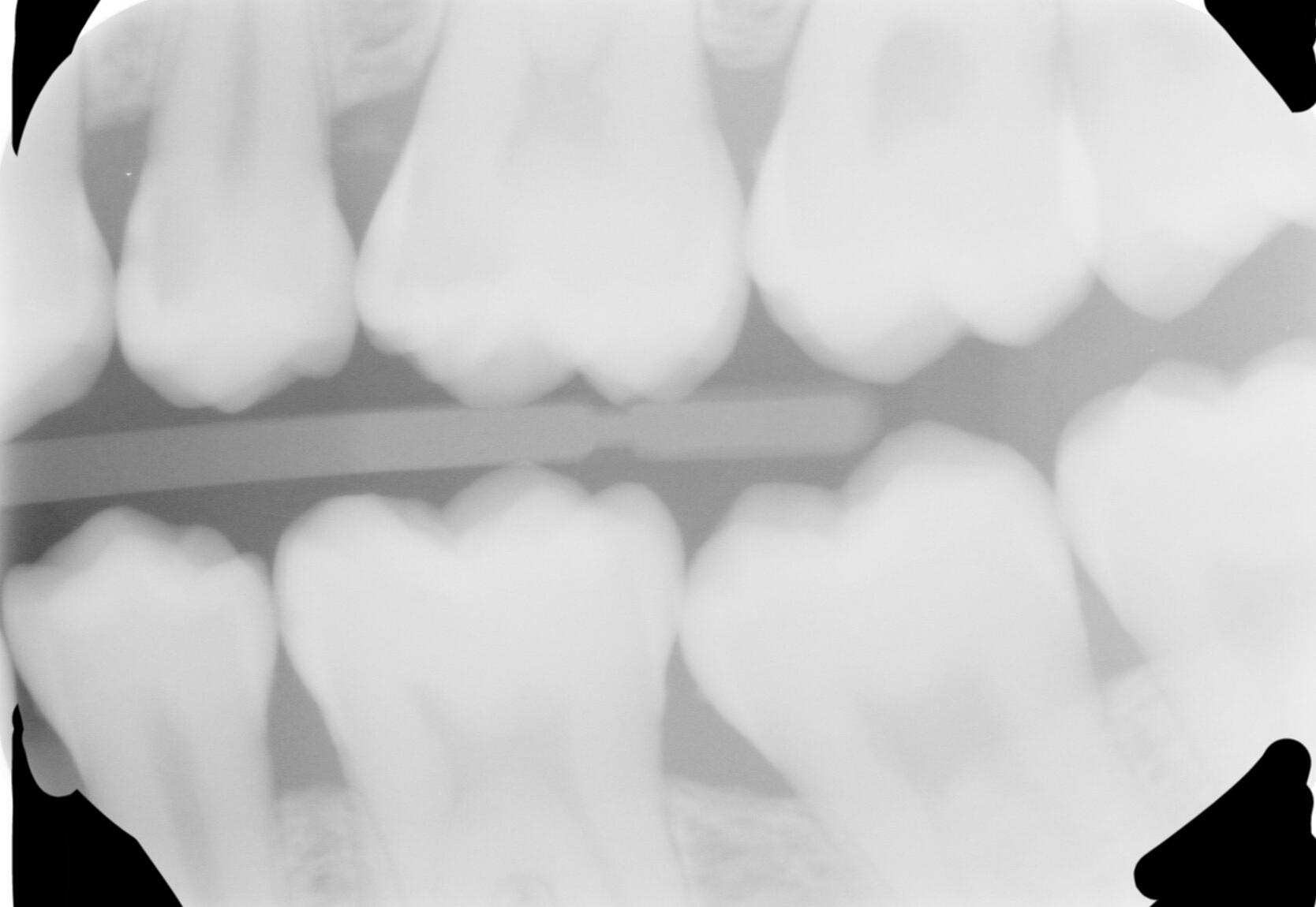È veramente impossibile ripulire un dente del giudizio?