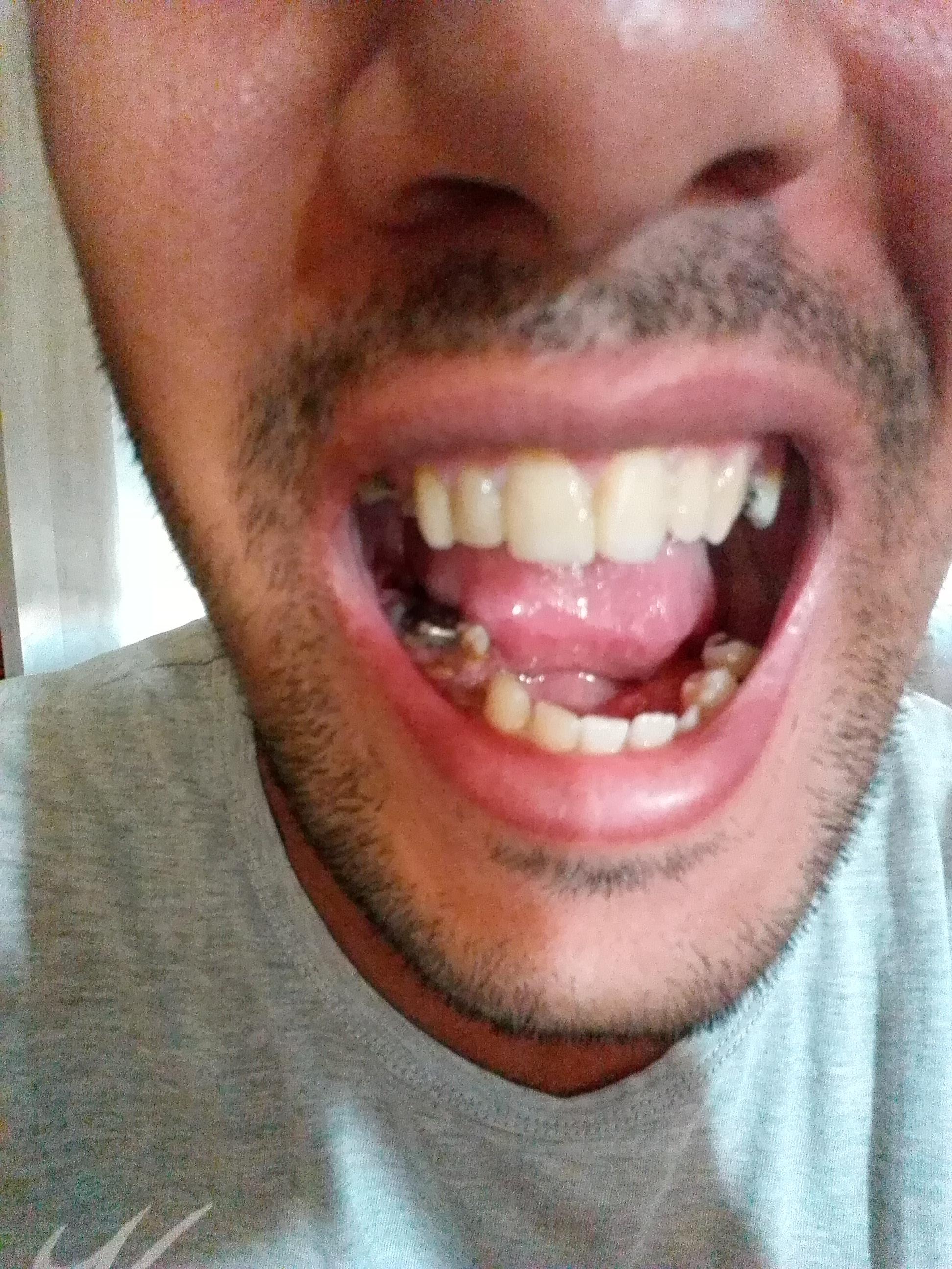 Il mio piu` grande desiderio è ridere senza dover vergognarmi di essere senza denti