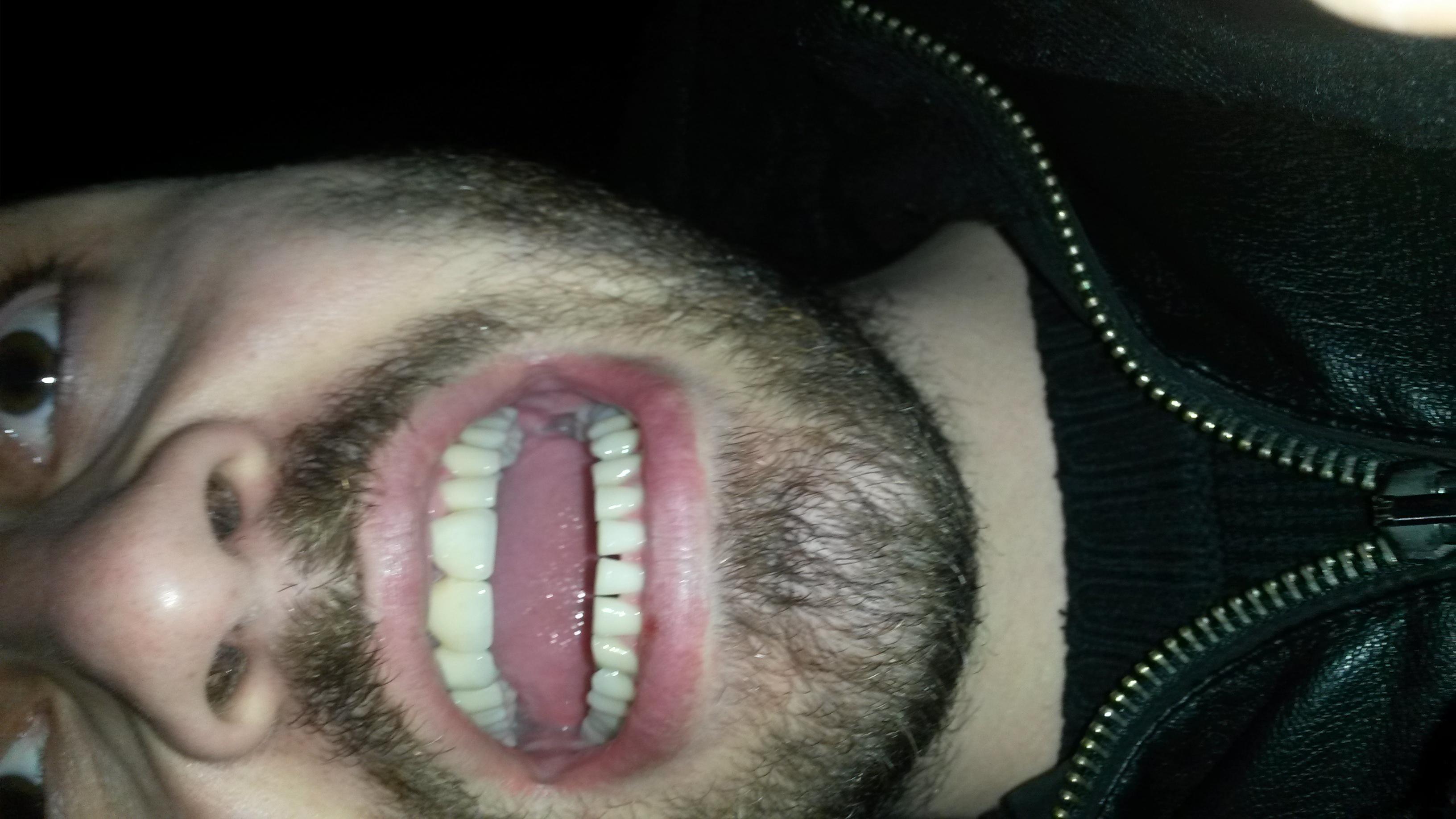 Apparecchio non adatto a denti di piccola dimensione?