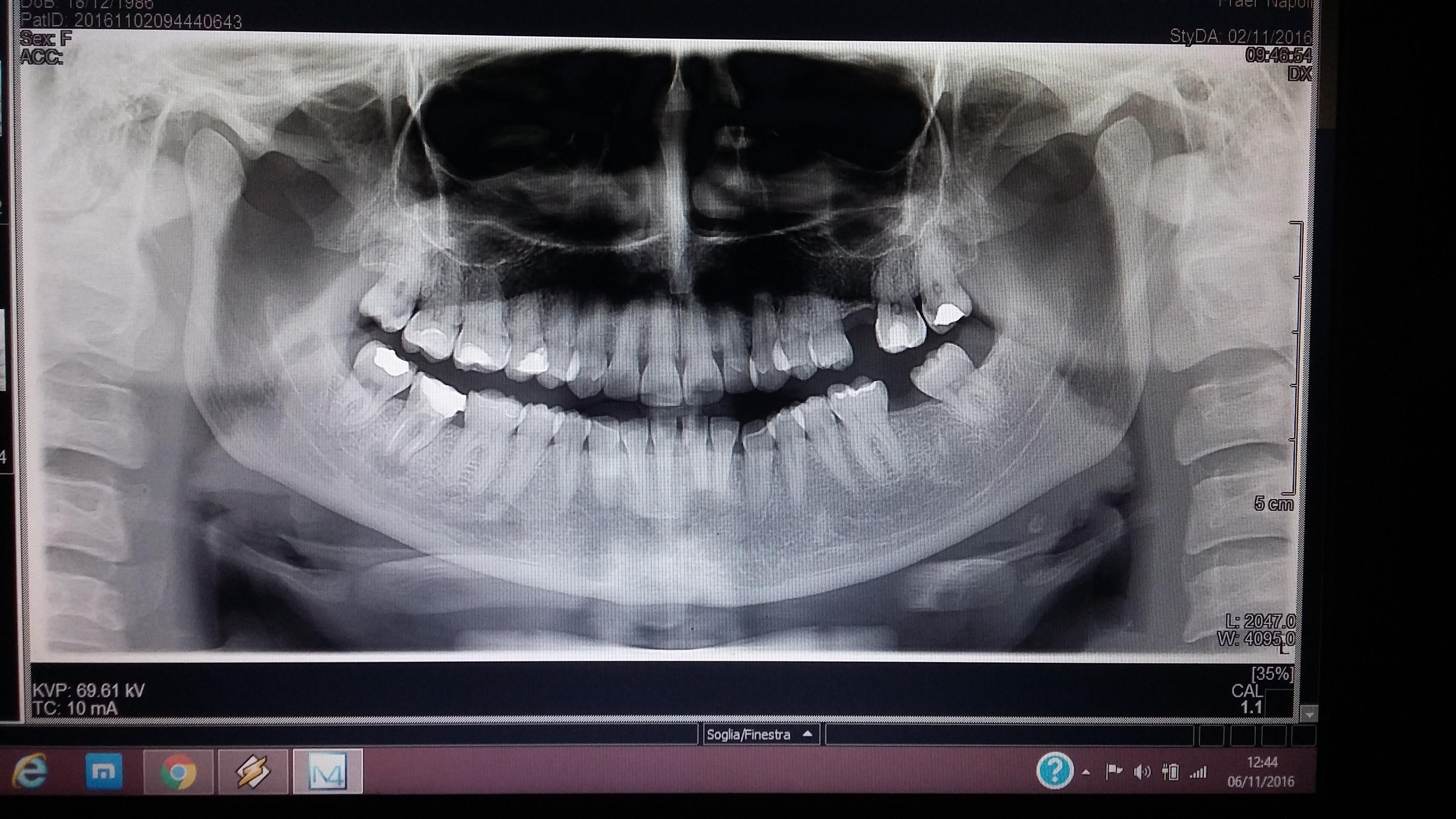 Secondo voi il dente 47 va estratto?