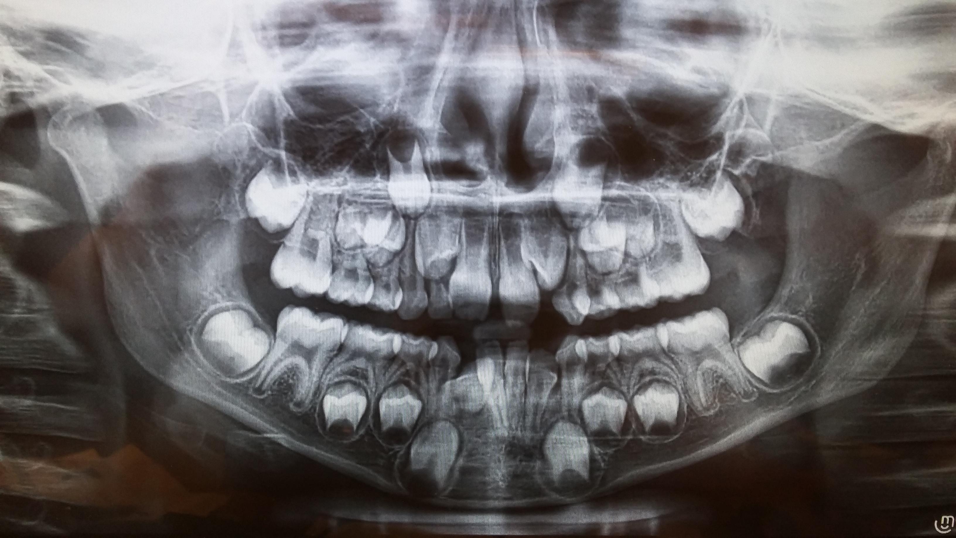 Affollamento di denti nell'arcata inferiore