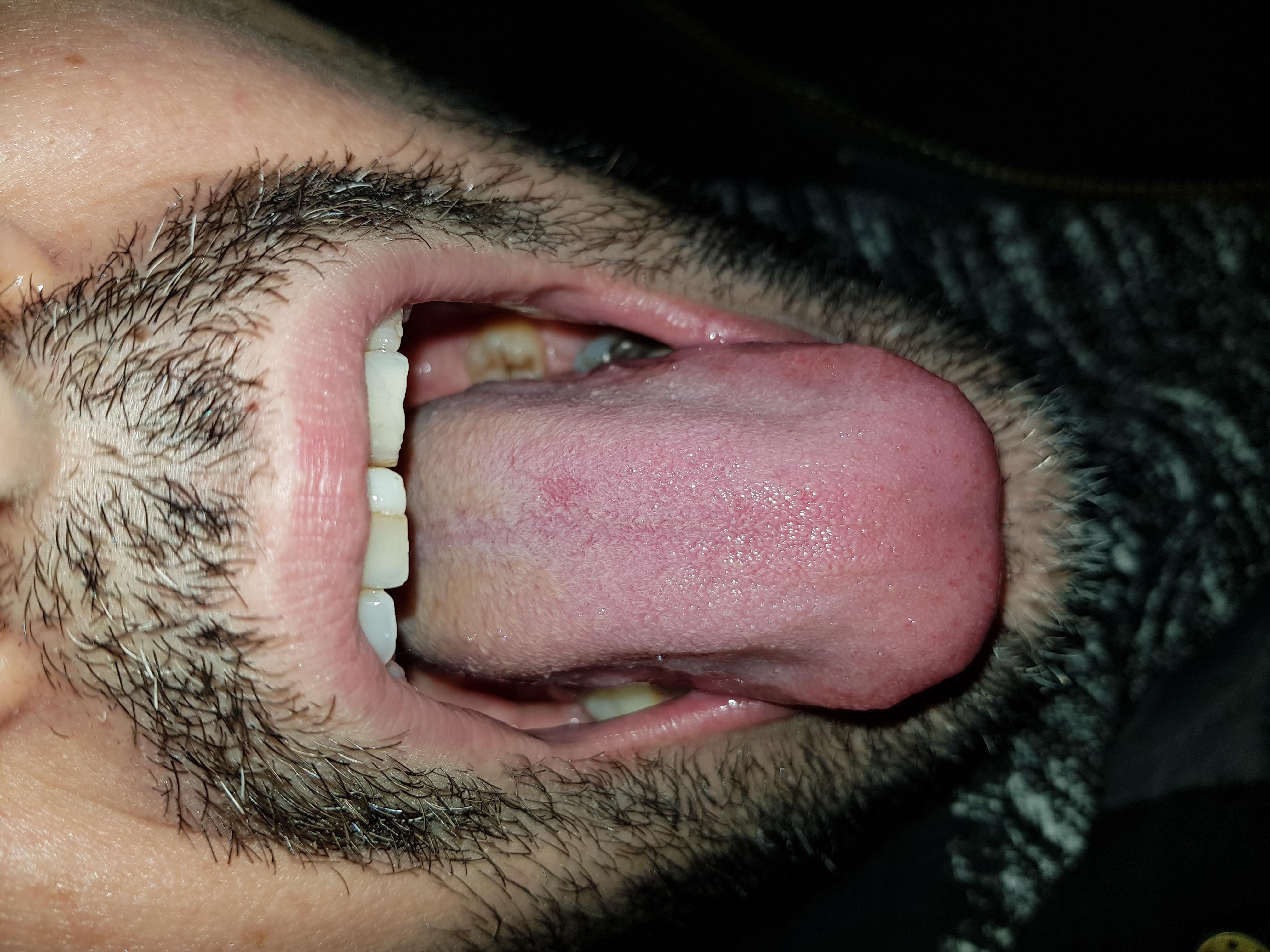 Potrebbe essere un infezione funghina tipo candida?