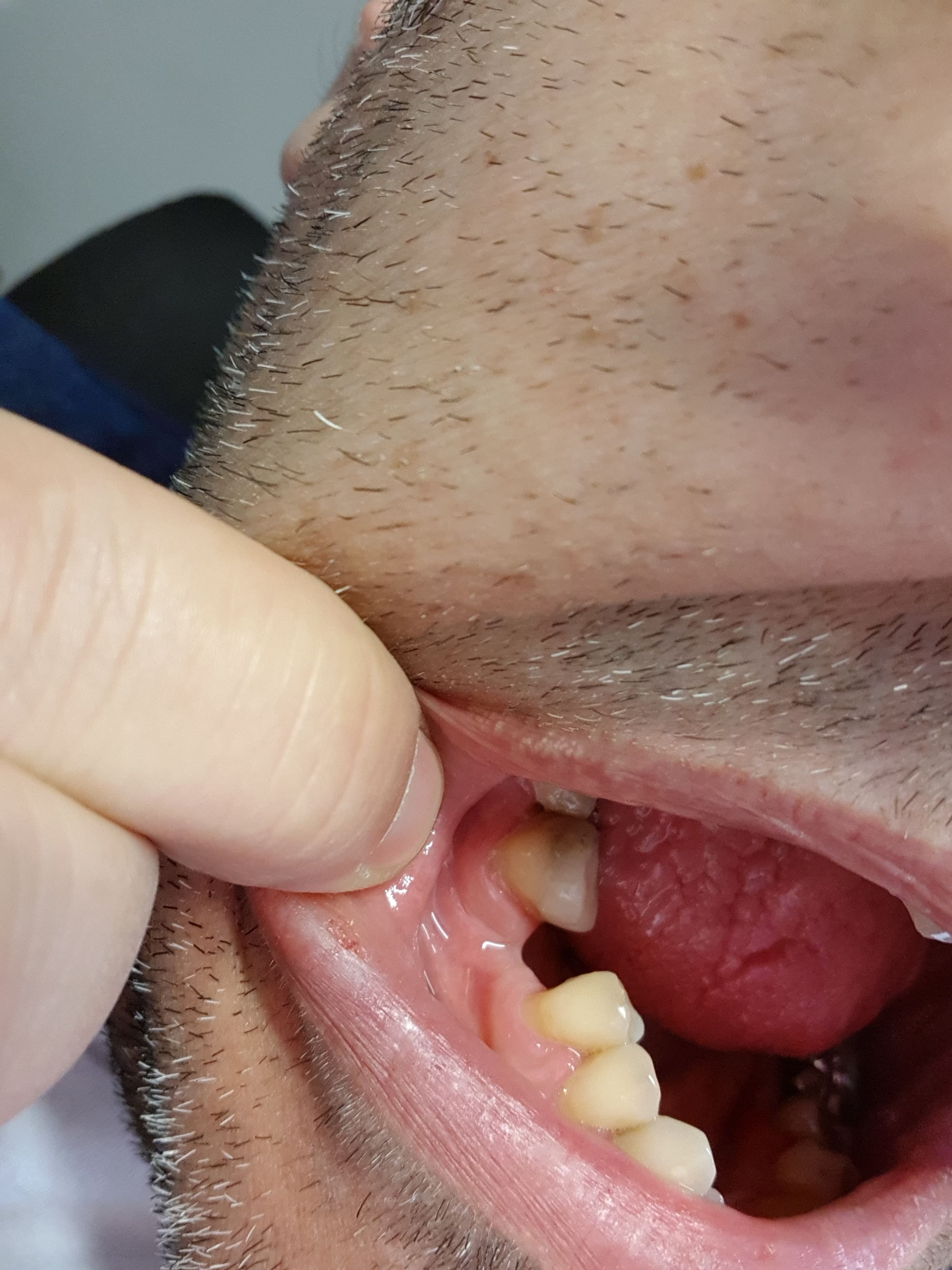 Un paio di giorni fa mi è stato inserito un intarsio su un molare
