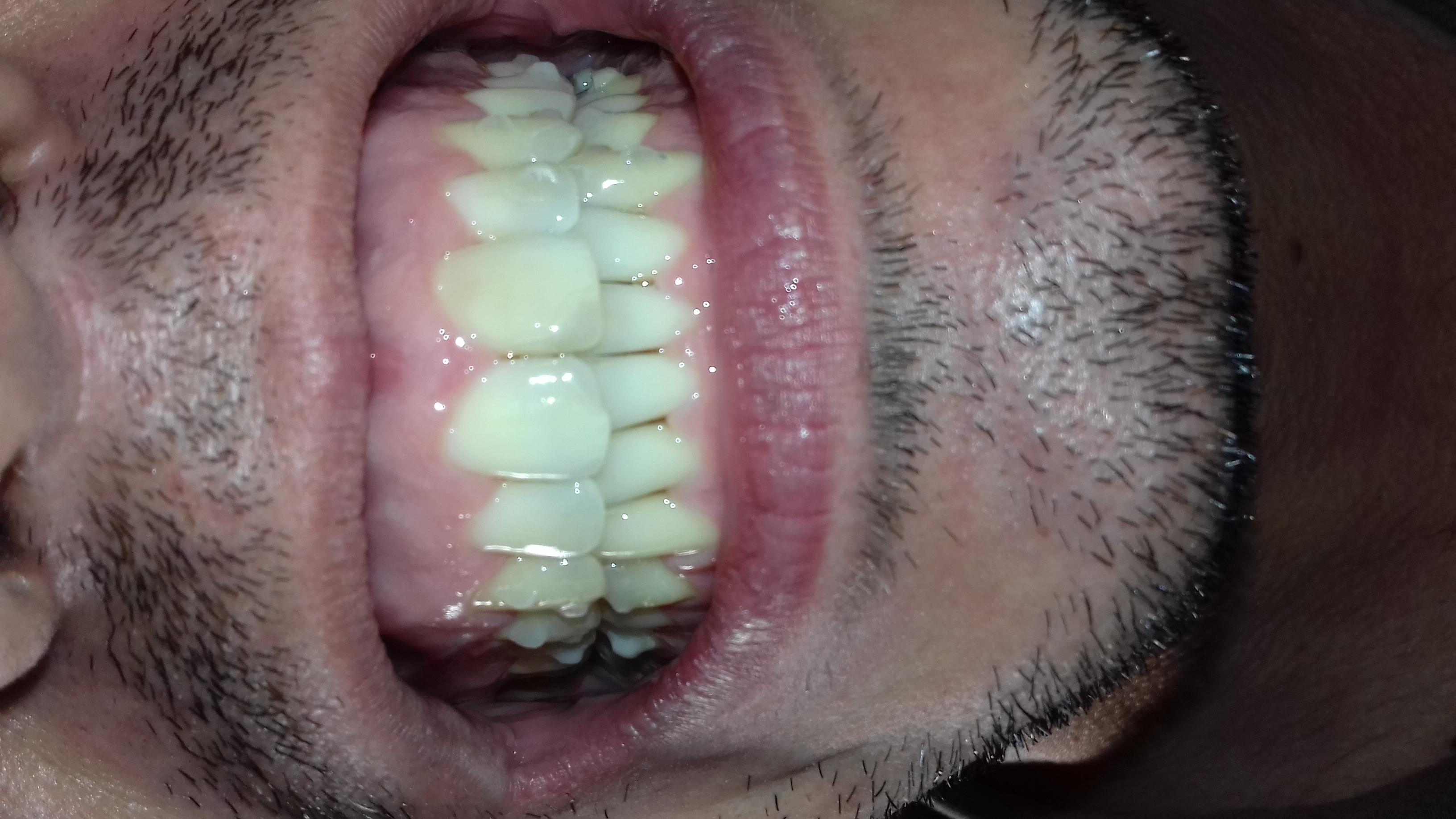 La prima volta mi è stata diagnosticata la parodontite a 20 anni