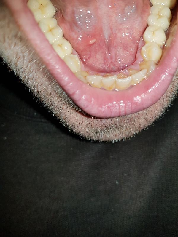 Avrebbe dovuto fare un'apicectomia per rimuovere definitivamente il granuloma?