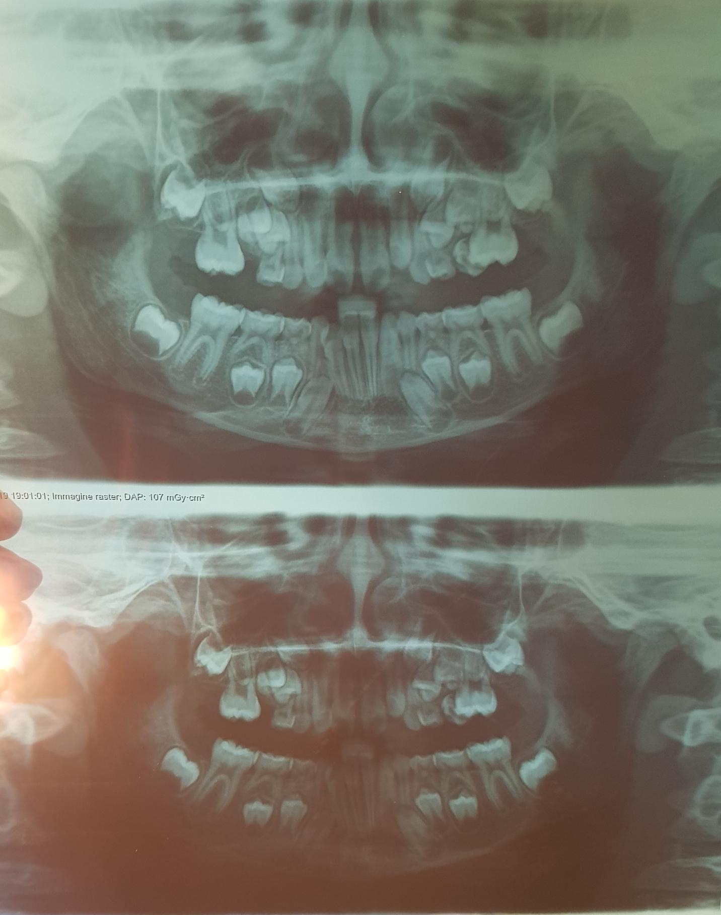Mio figlio di quasi 9 anni presenta una prima classe scheletrica con una III classe dentale