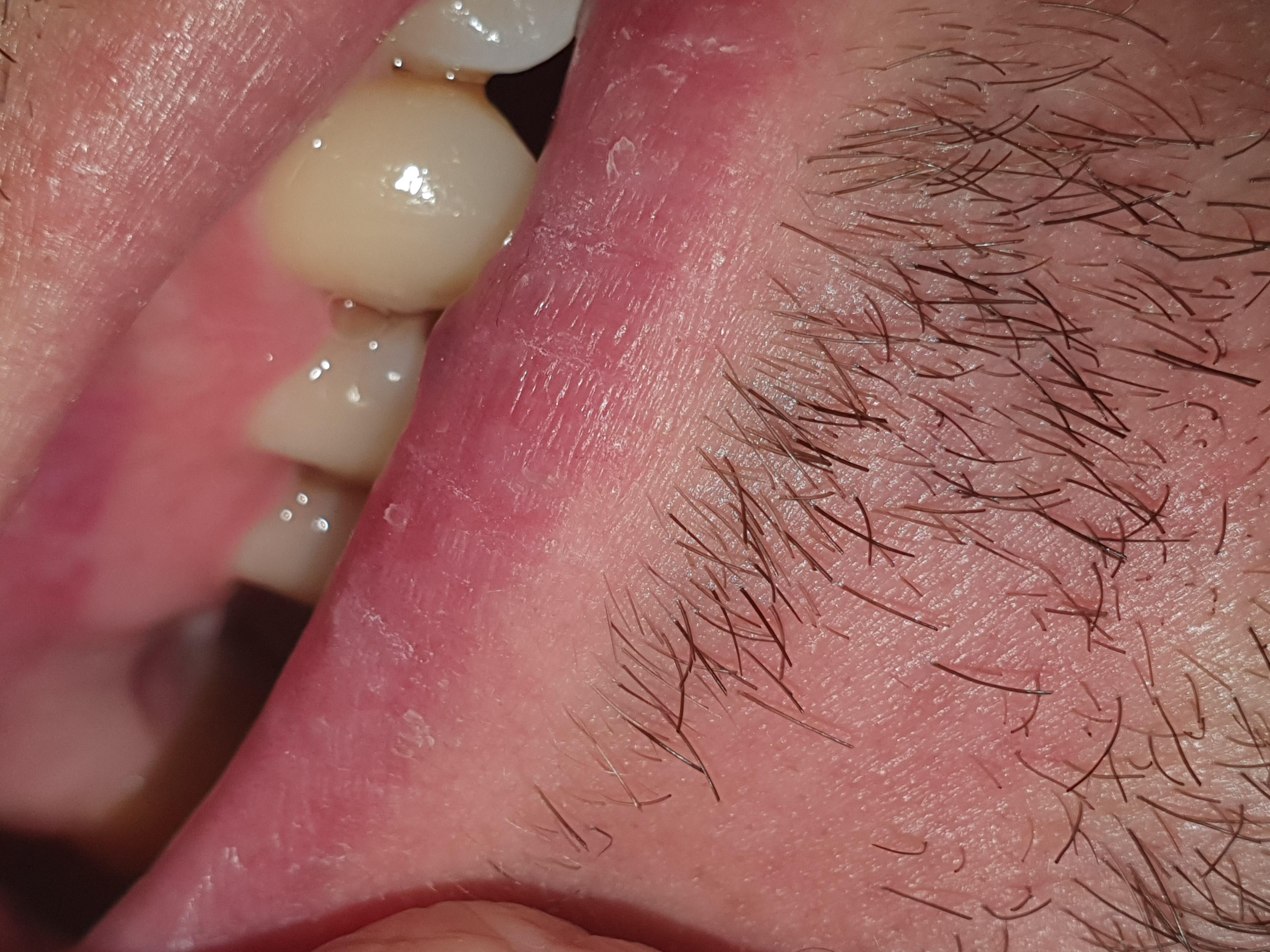Il 3 Gennaio mi e' stato estratto un molare