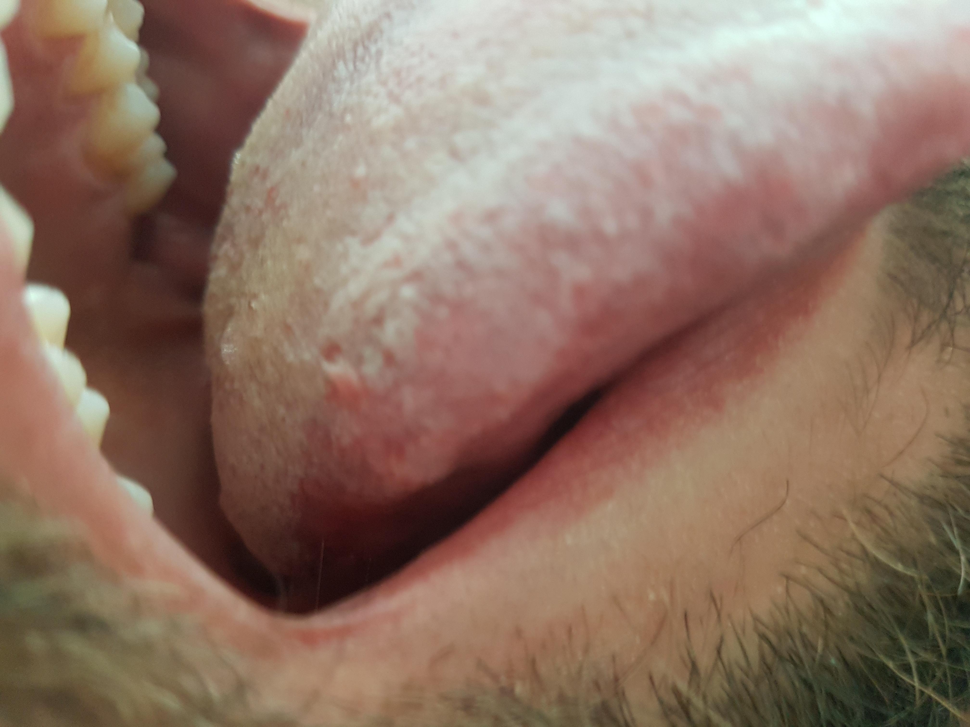 papiloma sulla lingua tratament pentru cancerul la plamani