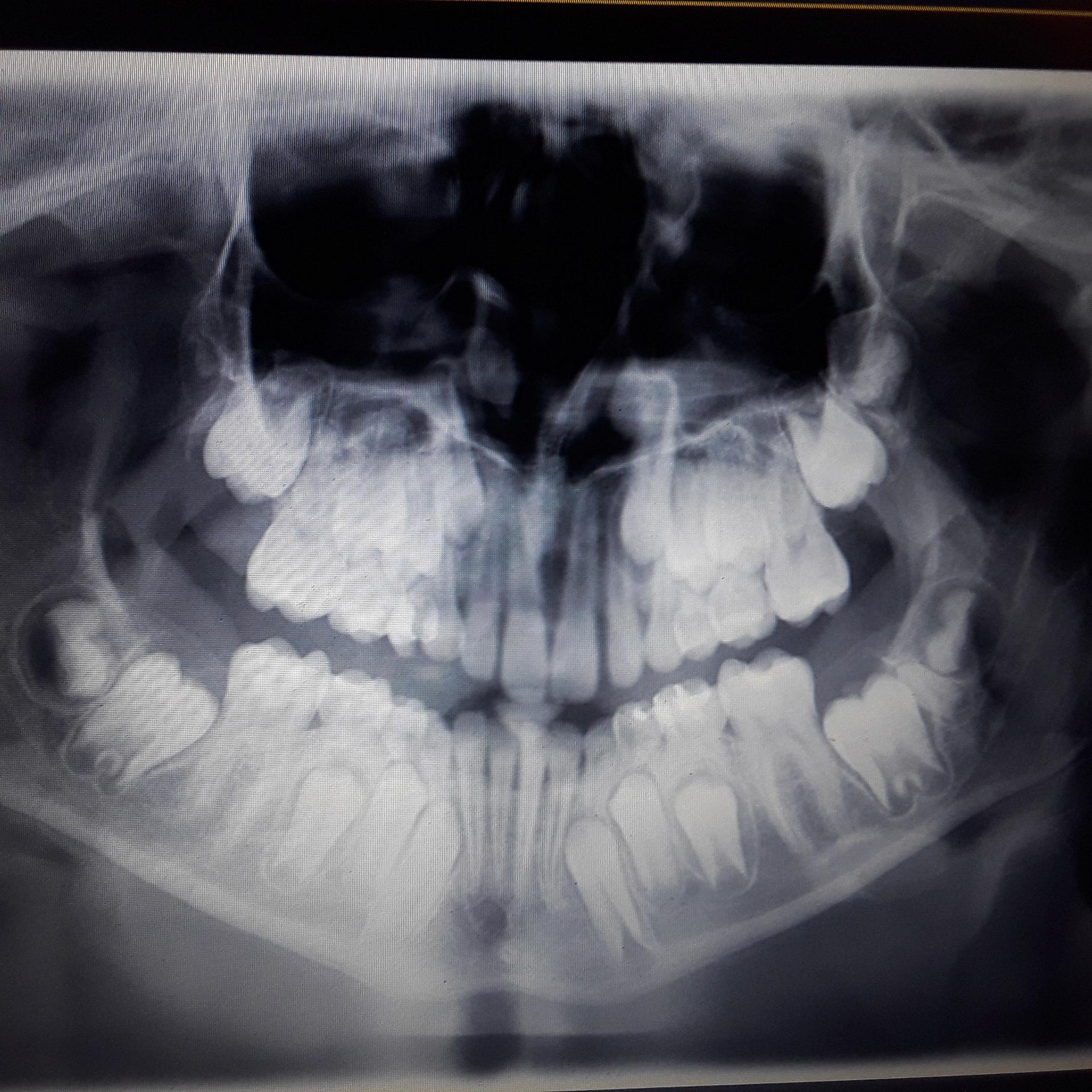 Radiografia di mio figlio di 12 anni