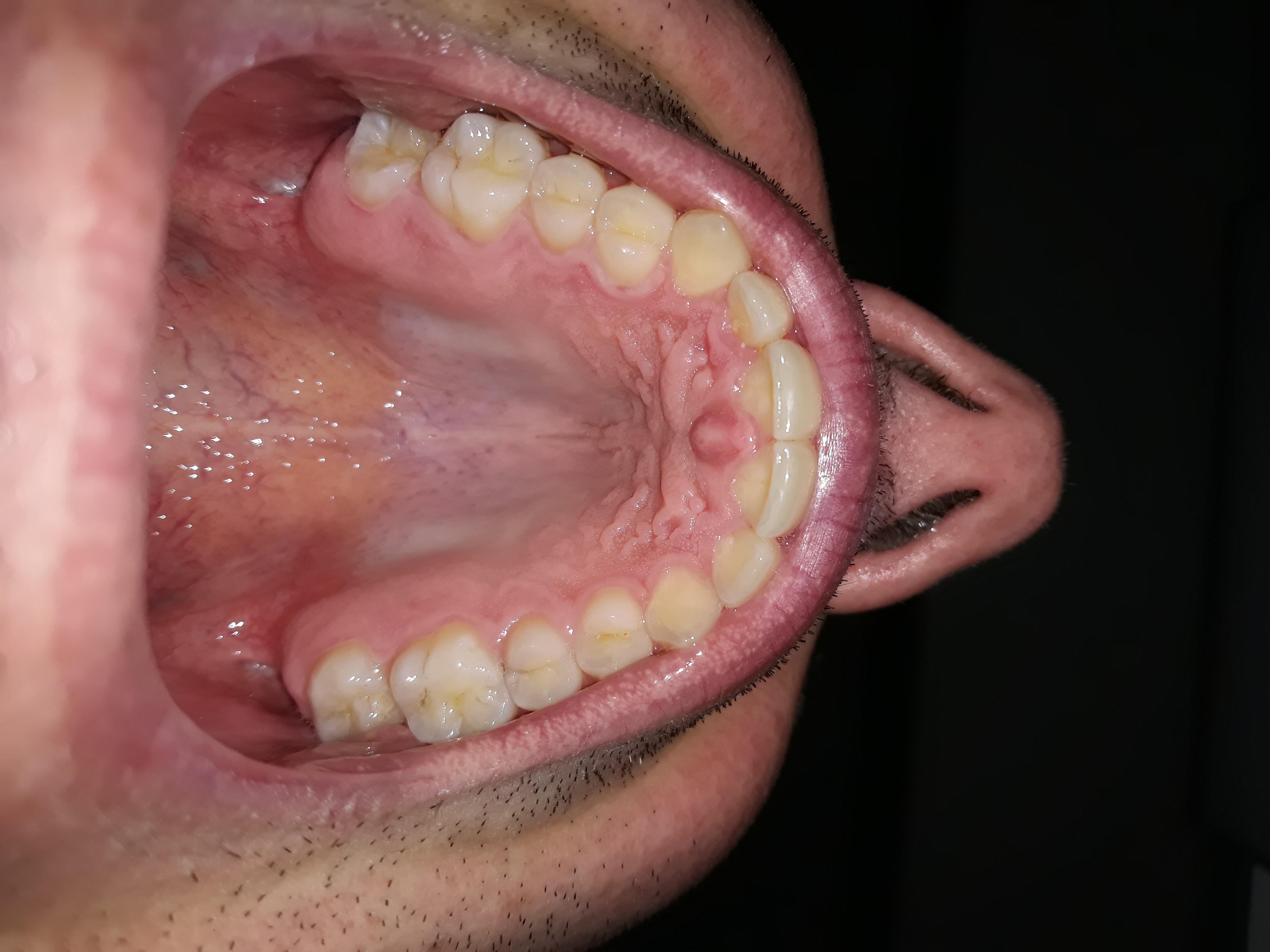 Macchie nei denti di color giallo. Cosa può essere?