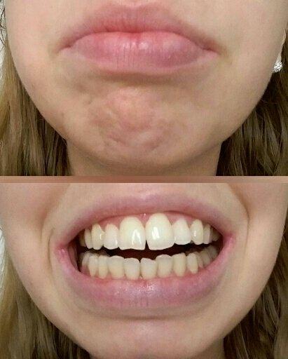 Denti inclinati e sporgenti