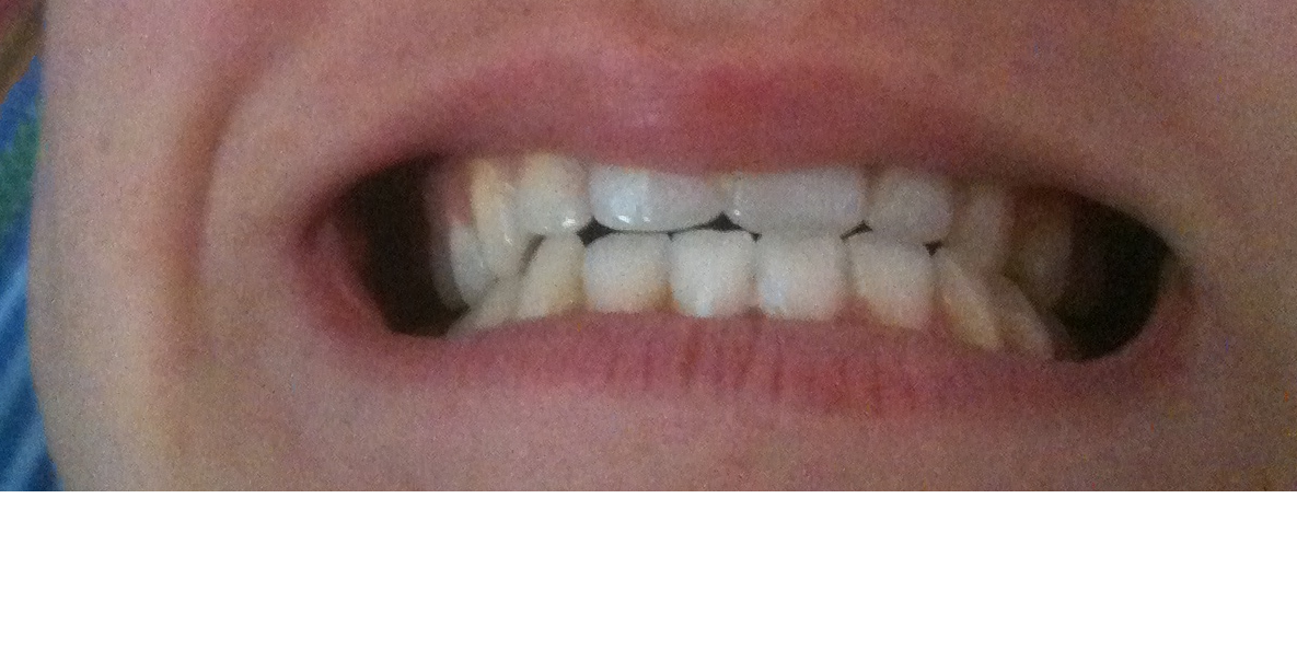 Il mio viso è diverso rispetto agli altri (mandibola sporgente e inclinazione verso sinistra)