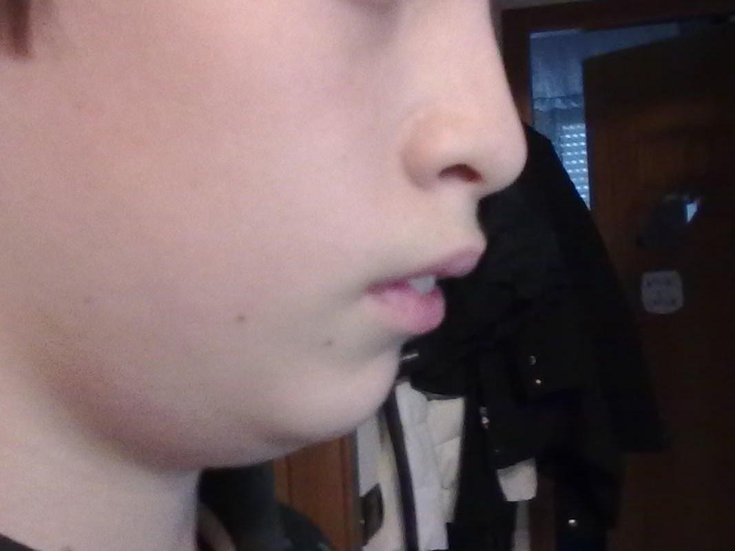 A mio figlio di 13 anni è stato diagnosticato un problema di malocclusione