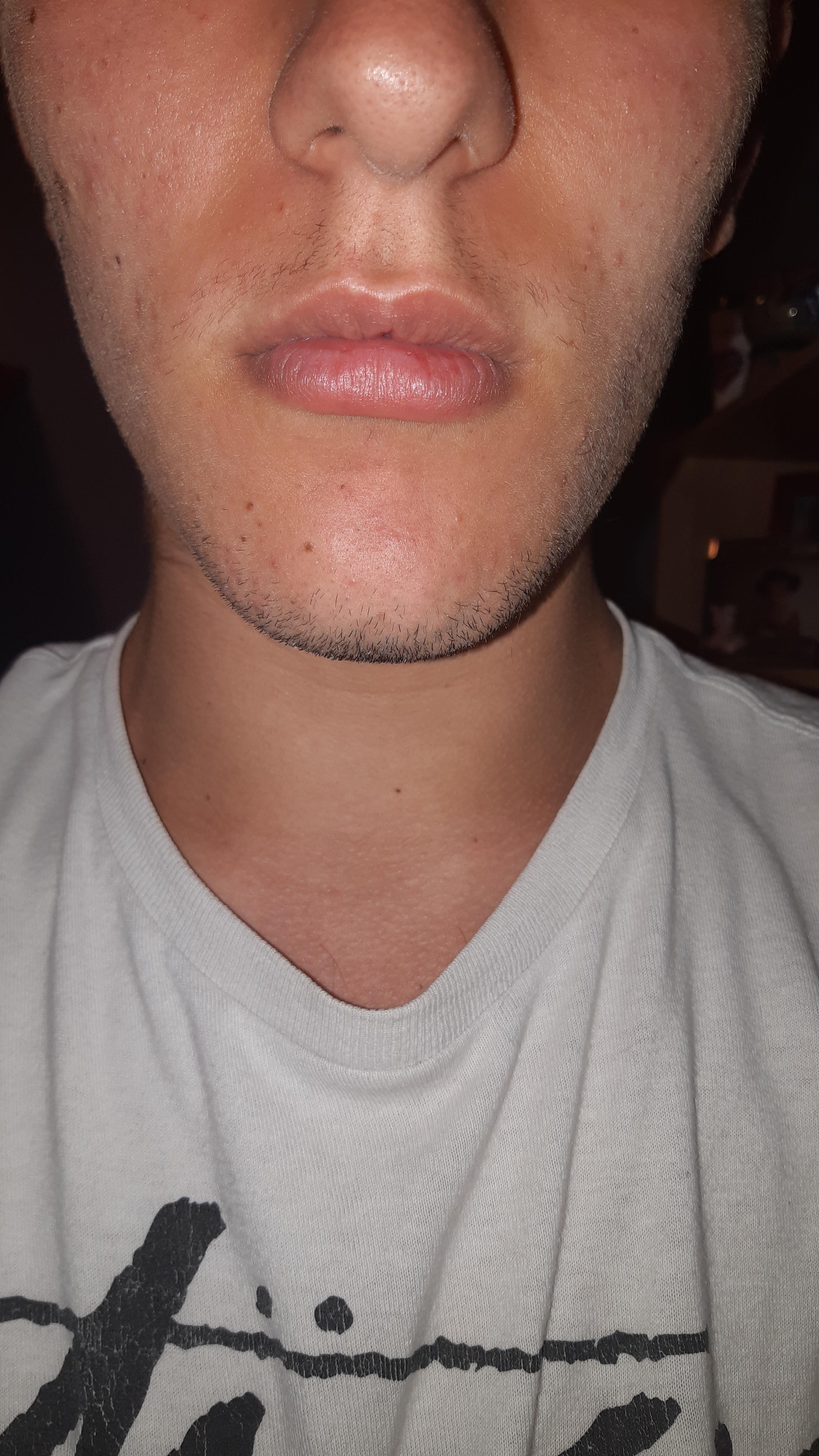 Dolori facciali