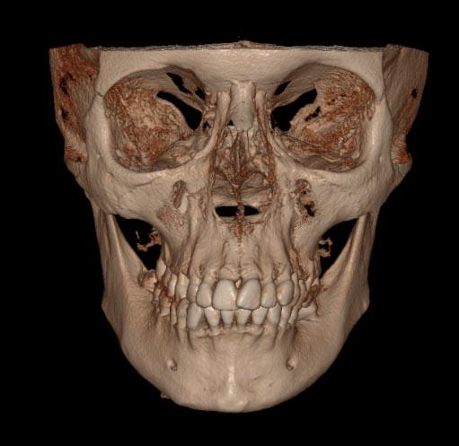 3D-ceph-orthodontic-lingual--orazio-bennici.jpg