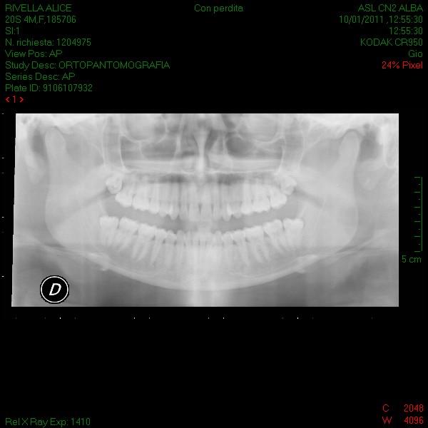 Ho effettuato una panoramica dalla quale risulta una disodontiasi degli ottavi