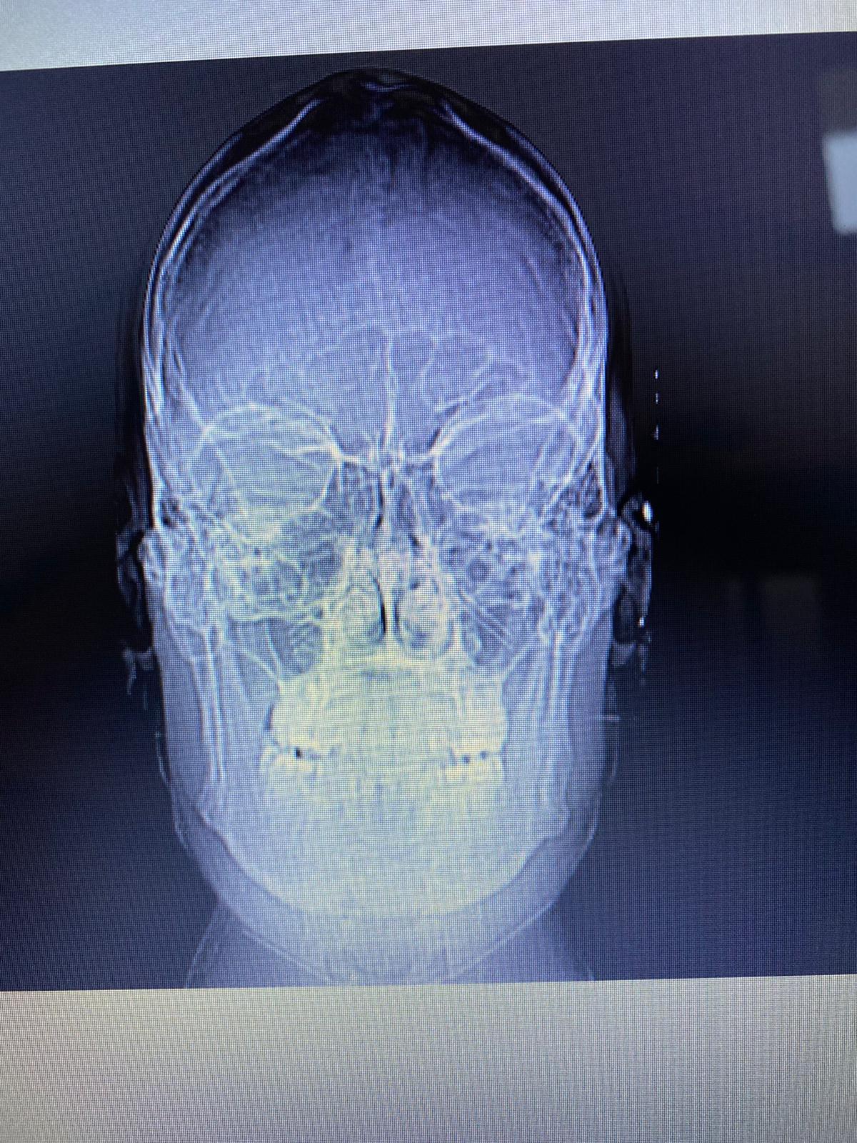 Da circa un mese soffre di acufene all'orecchio sinistro