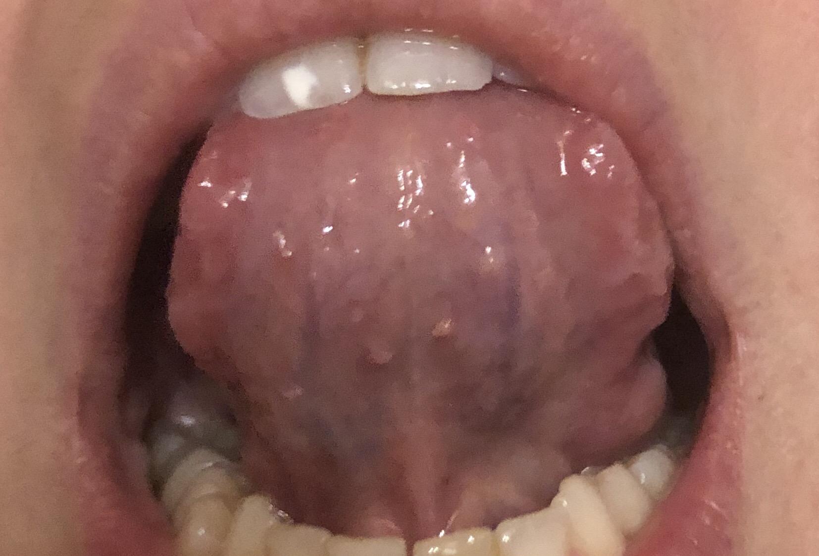 Da qualche settimana ho notato delle sporgenze sotto la lingua