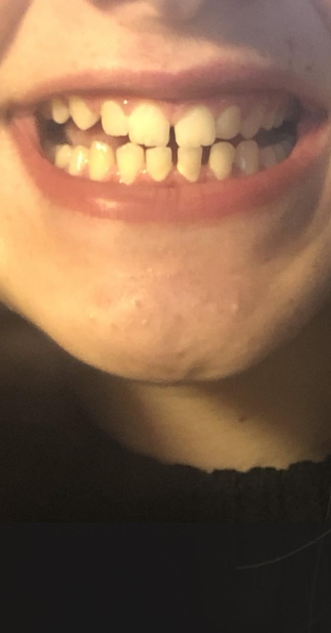 Vorrei avere dei consigli riguardo i miei diastemi