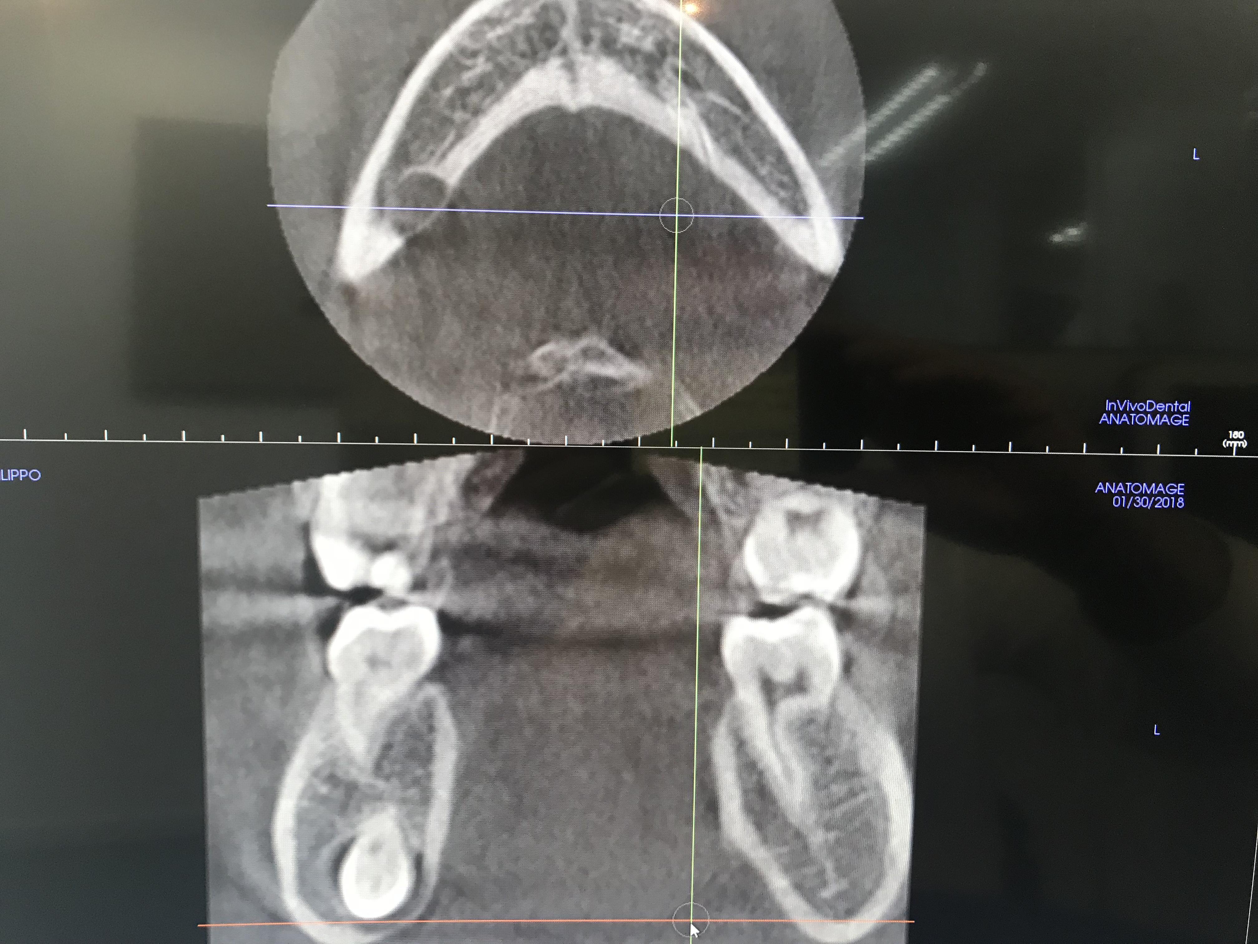 Mio figlio di 12 anni non ha i premolari inferiori