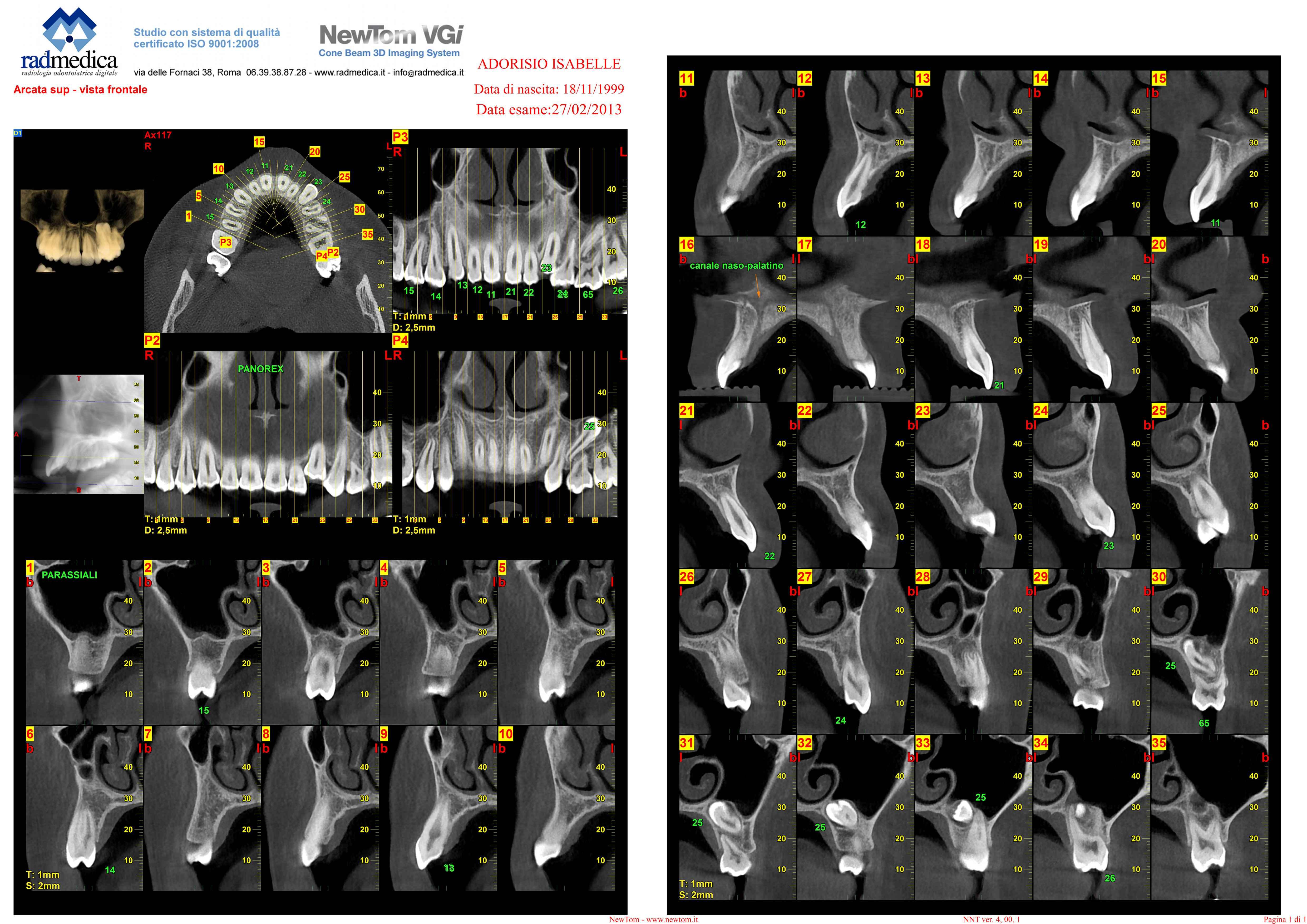 E' possibile fare l'ortodonzia evitando l'intervento?