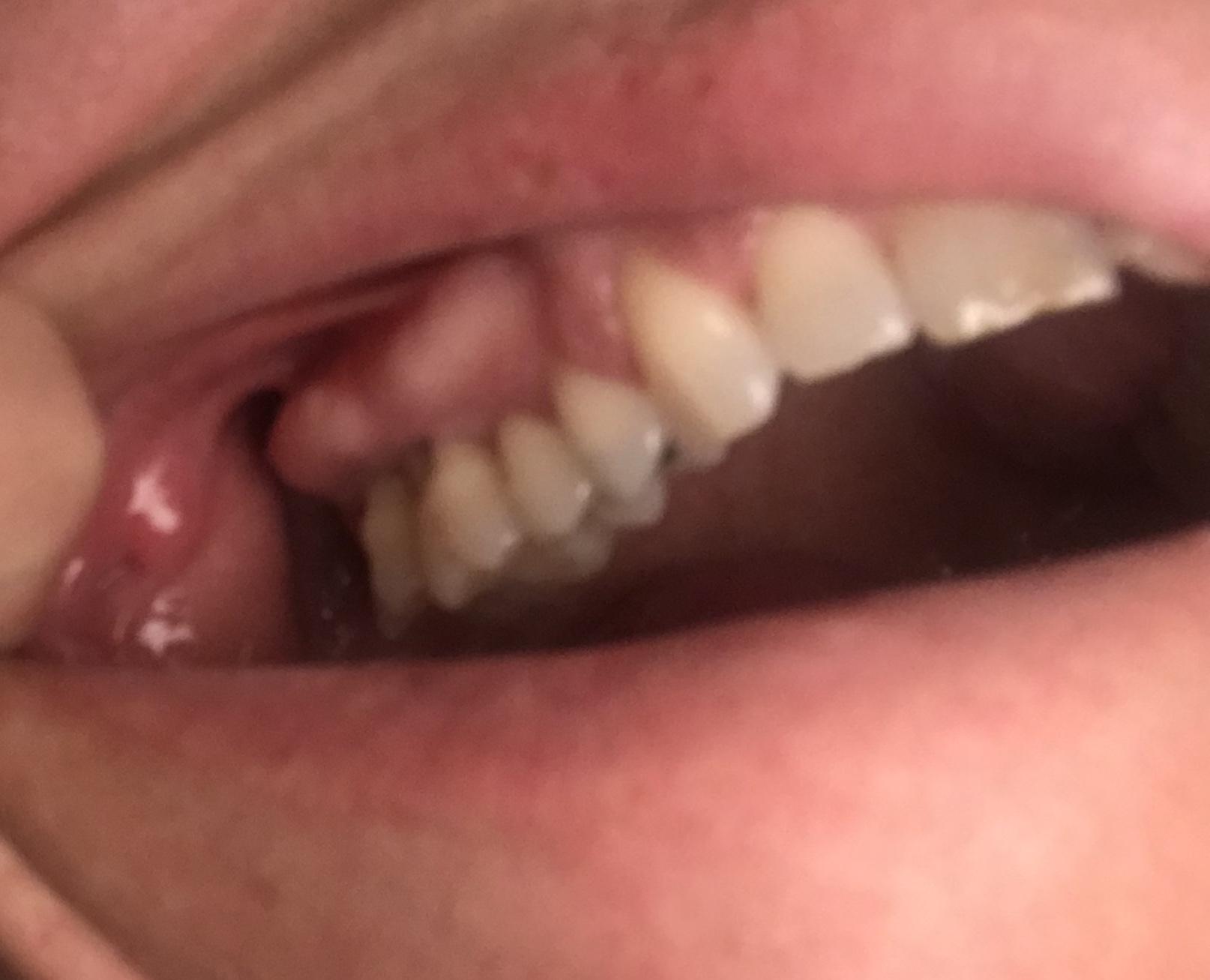 Mi hanno diagnosticata una grave parodontite
