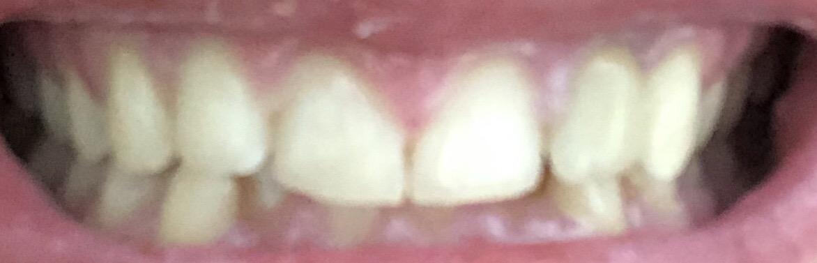 Può essere che il colore cambi o è il colore degli altri denti che può essere cambiato?
