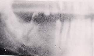 Necrosi pulpare con osteolisi periapicale che � stata trattata e salvata e sbiancata con perossido di idrogeno