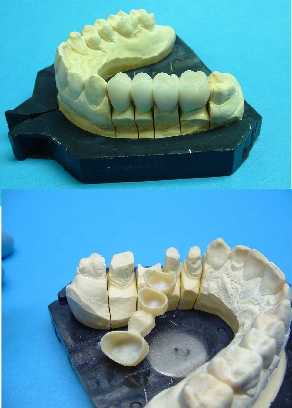 Protesi in zirconio porcellana vedere testo ed articolo segnalato.Da casistica Dr.Gustavo Petti e Dr.ssa Claudia Petti di Cagliari