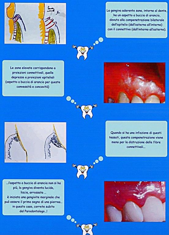 Gengiviti o Parodontite iniziale con tasche di 4-5 mm. Da casistica Parodontale del Dr. Gustavo Petti di Cagliari