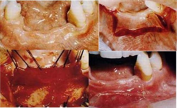 Interventi per aumentare il fornice preprotesici. Da casistica del Dr. Gustavo Petti di Cagliari