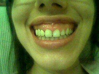 Gummy Smile da correggere con la chirurgia parodontale  estetica. Posto la sua foto, vede le gengive come sono troppe in confronto ai denti...ma deve consultare UN BRAVISSIMO PARODONTOLOGO.dr. Gustavo Petti di Cagliari