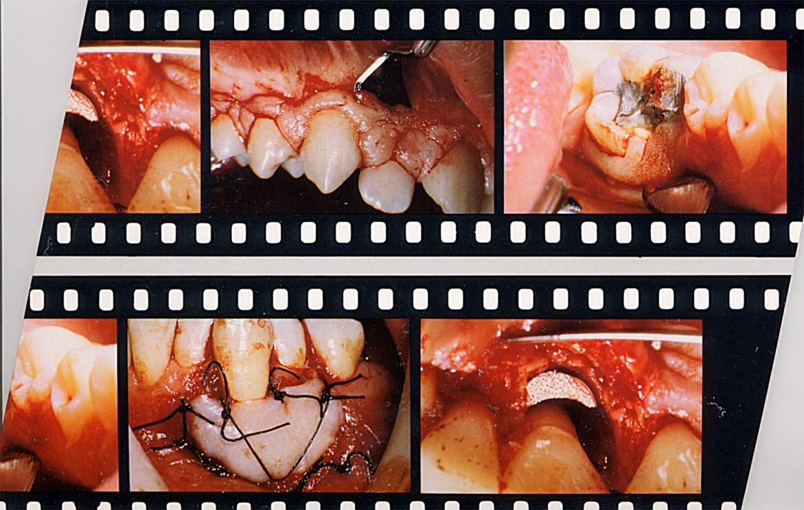 Esempi di Chirurgia Parodontale Estetica. Solo a titolo dimostrativo e culturale. Da casistica Parodontale del Dr. Gustavo Petti di Cagliari