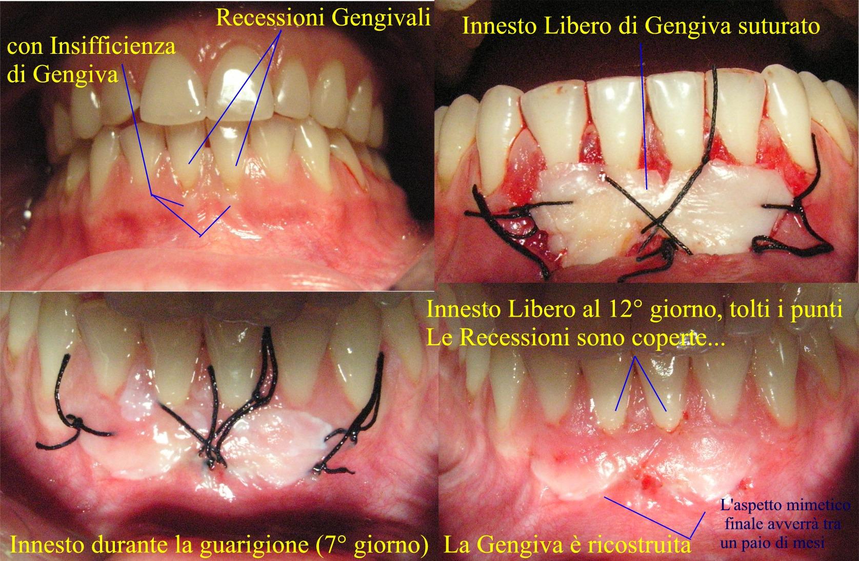 Innesti liberi di Gengiva. Da casistica Parodontale clinica del Dr. Gustavo Petti di Cagliari