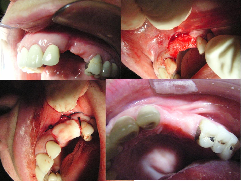 Chirurgia Parodontale Estetica