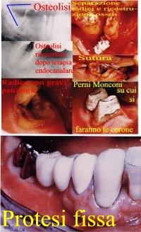 un caso di osteolisi periapicale, con sfondamento del pavimento della camera pulpare e difetti ossei complessi e misti a più pareti con gravi problemi parodontali ed endodontici.CURATO ed in bocca da 30 anni.Dr. Gustavo Petti