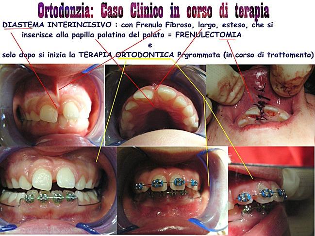 Frenulectomia per chiudere il diastema ed Ortodonzia.Da casistica della Dr.ssa Claudia Petti di Cagliari