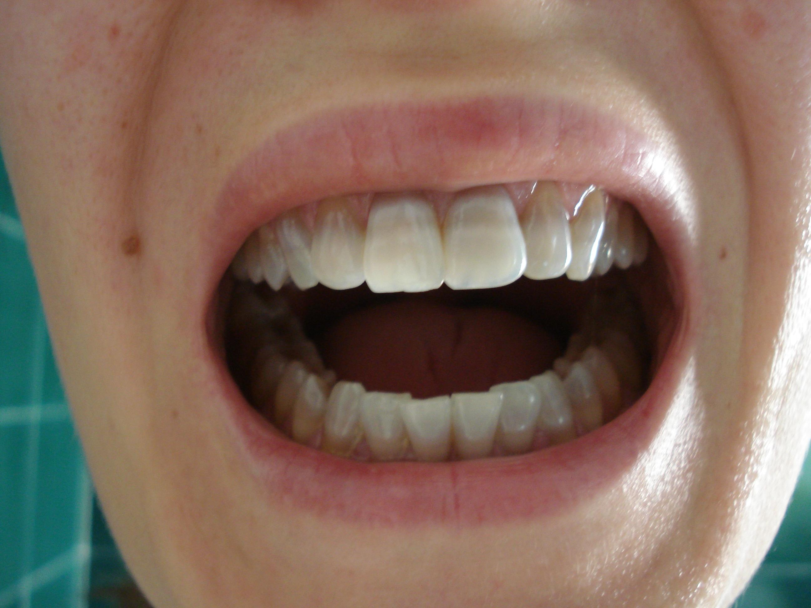 Seguito alla domanda: Ho i denti di colore grigio rovinati dagli antibiotici presi da piccola