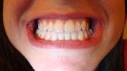 Trattamenti ortodontici e rapporti occlusali